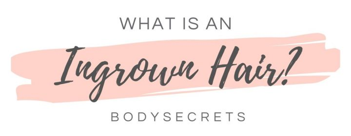 What is an ingrown hair - graphic